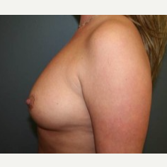 25-34 year old woman treated with Breast Implants before 3303886