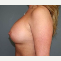 25-34 year old woman treated with Breast Implants after 3303886