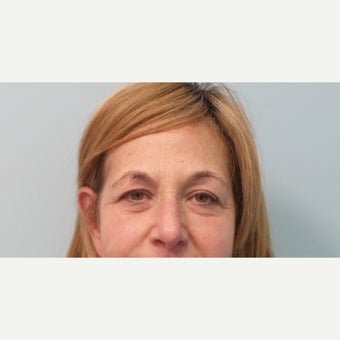 55-64 year old woman treated with Restylane before 2391845