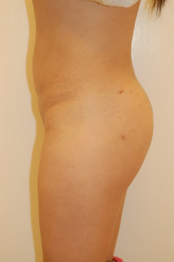 Buttock Enhancement after 905649