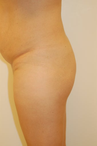 Buttock Enhancement before 905649