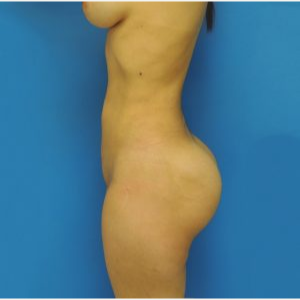 35-44 year old woman treated with Brazilian Butt Lift after 3749233