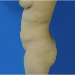 35-44 year old woman treated with Brazilian Butt Lift before 3749233