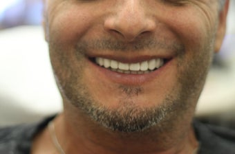 All-on-4 Dental Implants after 1138368
