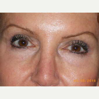 65-74 year old woman treated with Eyelid Surgery after 3493079