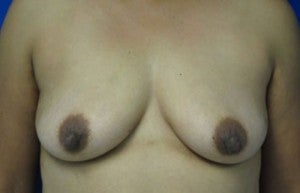 Breast Augmentation before 3054775