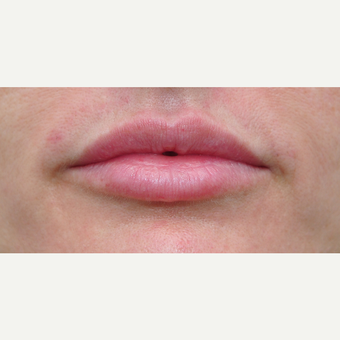 35-44 year old woman treated with Lip Augmentation after 3565036