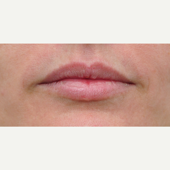 35-44 year old woman treated with Lip Augmentation before 3565036