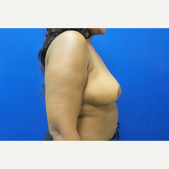 Breast Reduction and Lift after 3630787