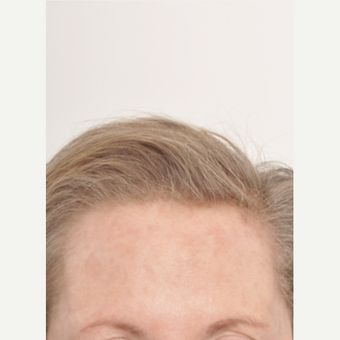 65-74 year old woman treated with Hair Transplant after 3842926