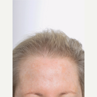65-74 year old woman treated with Hair Transplant before 3842926
