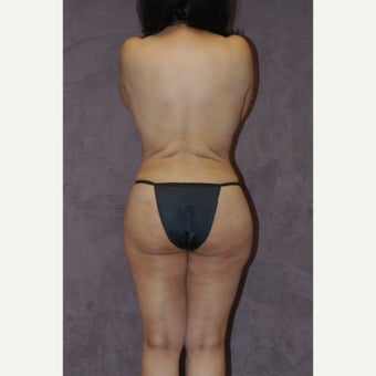 55-64 year old woman treated with Brazilian Butt Lift after 2581904