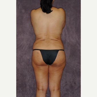 55-64 year old woman treated with Brazilian Butt Lift before 2581904