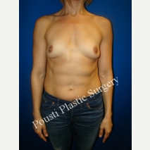 35-44 year old woman treated with Mentor Breast Implants before 2995335