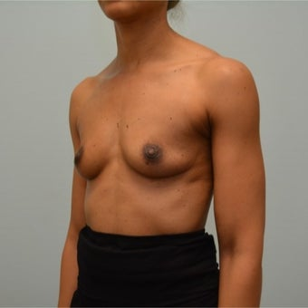 44 year old woman treated with Natrelle 410 styleFM (Full Height, Moderate Profile) implants. before 2198839