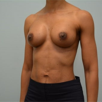 44 year old woman treated with Natrelle 410 styleFM (Full Height, Moderate Profile) implants. after 2198839