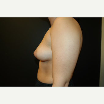 25-34 year old woman treated with Breast Implants before 3566230