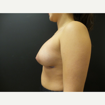 25-34 year old woman treated with Breast Implants after 3566230