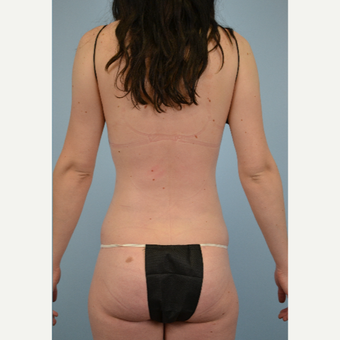 23 year old woman treated with liposuction in areas of flanks/love handles/muffin top after 2910854