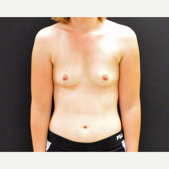 "27 year old female who is 5'2"" and 122 pounds underwent breast augmentation with 285cc silicone gel before 2990079"
