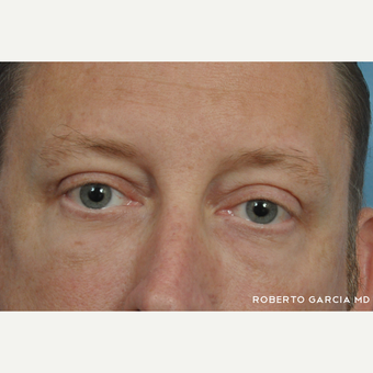 45-54 year old man treated with Eyelid Surgery after 3134719