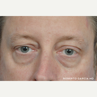 45-54 year old man treated with Eyelid Surgery before 3134719
