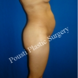 35-44 year old woman treated with Tummy Tuck before 3764924
