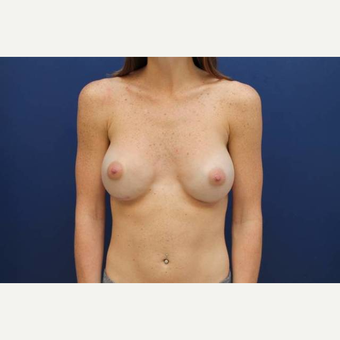 33 year old female, 300cc high profile silicone gel breast implants, submuscular after 3814658