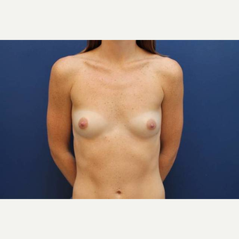 33 year old female, 300cc high profile silicone gel breast implants, submuscular before 3814658