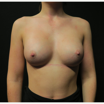 18-24 year old woman treated with Breast Augmentation after 3568527