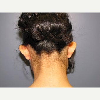 14 year old female treated with Ear Surgery (Otoplasty) before 2550353