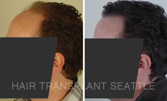 35-44 year old man treated with Hair Transplant after 2989957