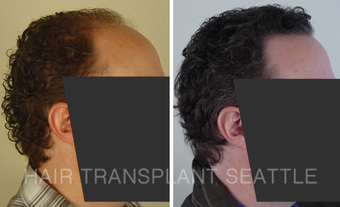 35-44 year old man treated with Hair Transplant before 2989957