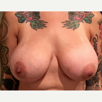 25-34 year old woman treated with Breast Augmentation after 3213685