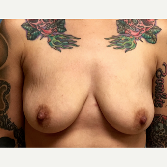 25-34 year old woman treated with Breast Augmentation before 3213685
