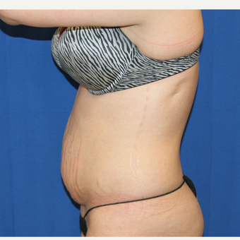 25-34 year old woman treated with Tummy Tuck before 3259036
