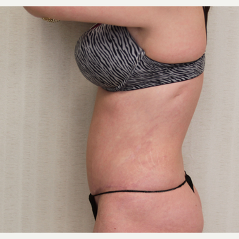 25-34 year old woman treated with Tummy Tuck after 3259036