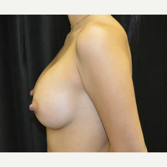 18-24 year old woman treated with Breast Implants after 3423920