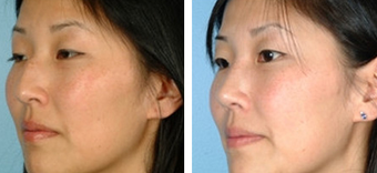 Asian Eyelid Surgery before 1208229