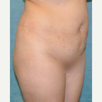 35-44 year old woman treated with Tummy Tuck before 2340270