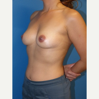 Breast Augmentation before 3807139