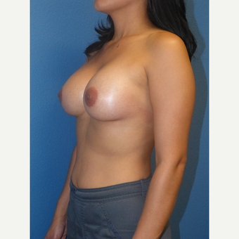 Breast Augmentation after 3807139