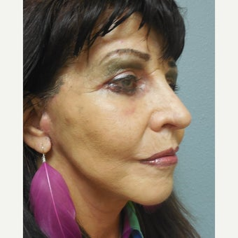 65-74 year old woman treated with Lower Face Lift 1938240