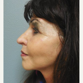 65-74 year old woman treated with Lower Face Lift after 1938240