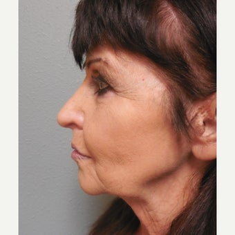 65-74 year old woman treated with Lower Face Lift before 1938240