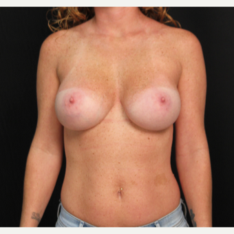 33 year old female with bilateral submuscular silicone implants placed through the underarm after 3576152