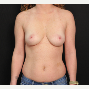 33 year old female with bilateral submuscular silicone implants placed through the underarm before 3576152