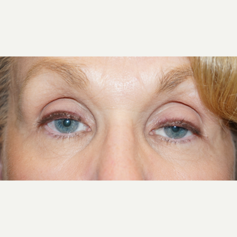 62 year old woman treated with bilateral ptosis surgery before 3148571