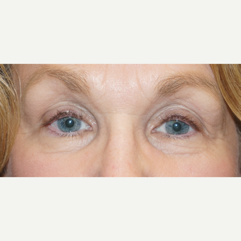 62 year old woman treated with bilateral ptosis surgery after 3148571
