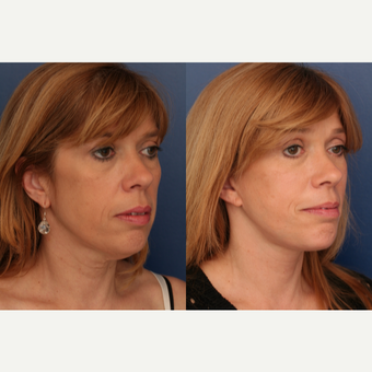 45-54 year old woman treated with Facelift after 3705843